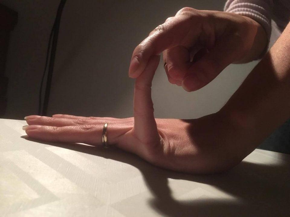 Hypermobiliteit : kenmerken